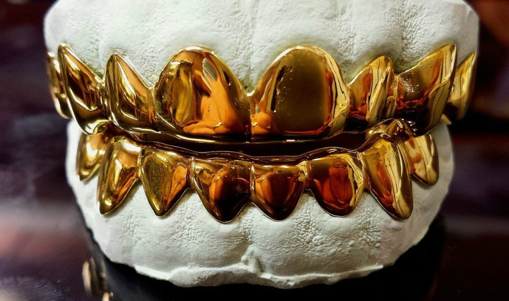 Cum își reîntregesc oamenii dinții cu aur, chiar și în anul 2017!