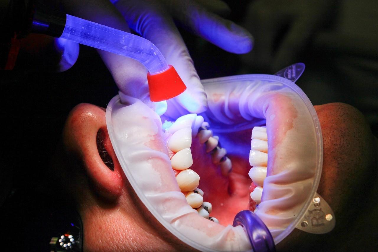 DaddyCool cariile dentare